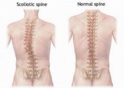 [画像]背骨の比較