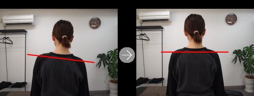 [写真]施術前後比較~肩の位置~