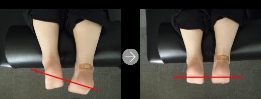 [写真]施術前後比較~脚の位置~